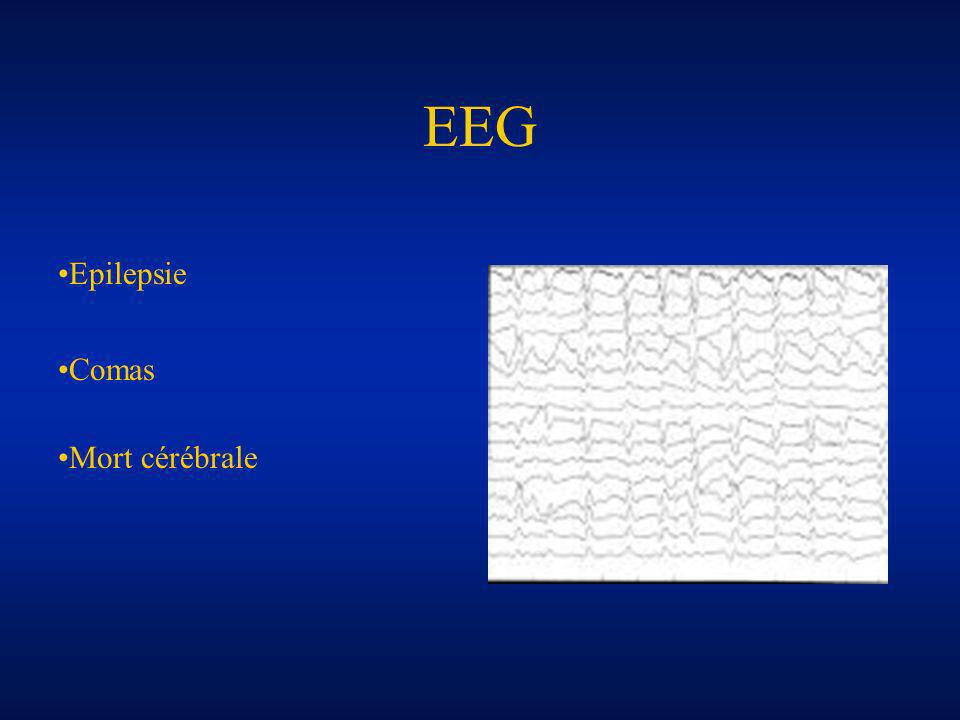 EEG Epilepsie Comas Mort cérébrale