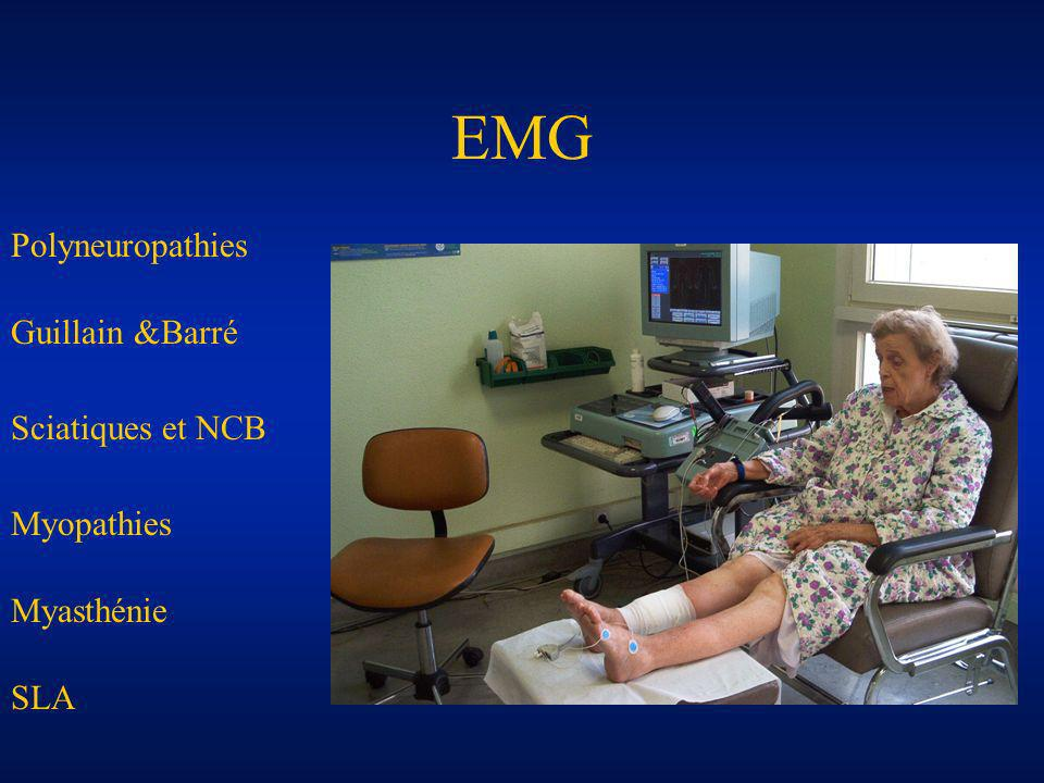 EMG Polyneuropathies Guillain &Barré Sciatiques et NCB Myopathies