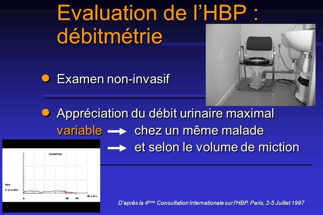 Evaluation de l'HBP : débitmétrie