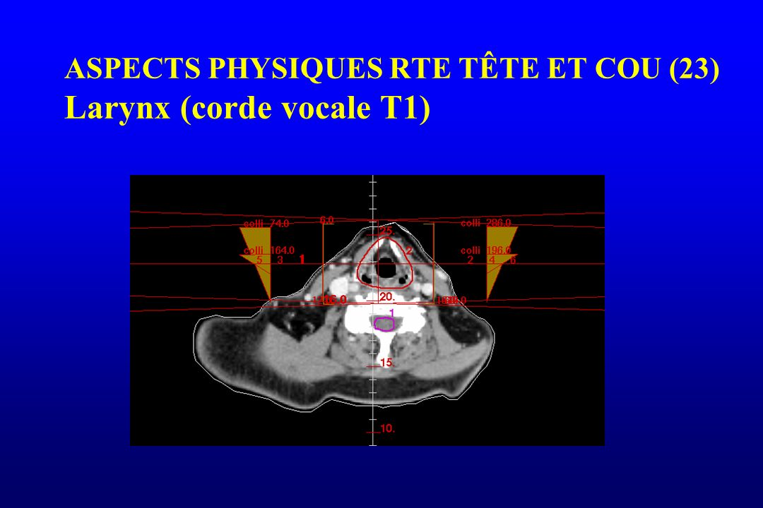 ASPECTS PHYSIQUES RTE TÊTE ET COU (23) Larynx (corde vocale T1)