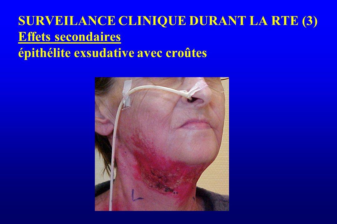SURVEILANCE CLINIQUE DURANT LA RTE (3) Effets secondaires épithélite exsudative avec croûtes