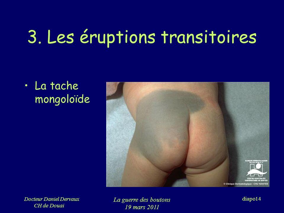 3. Les éruptions transitoires