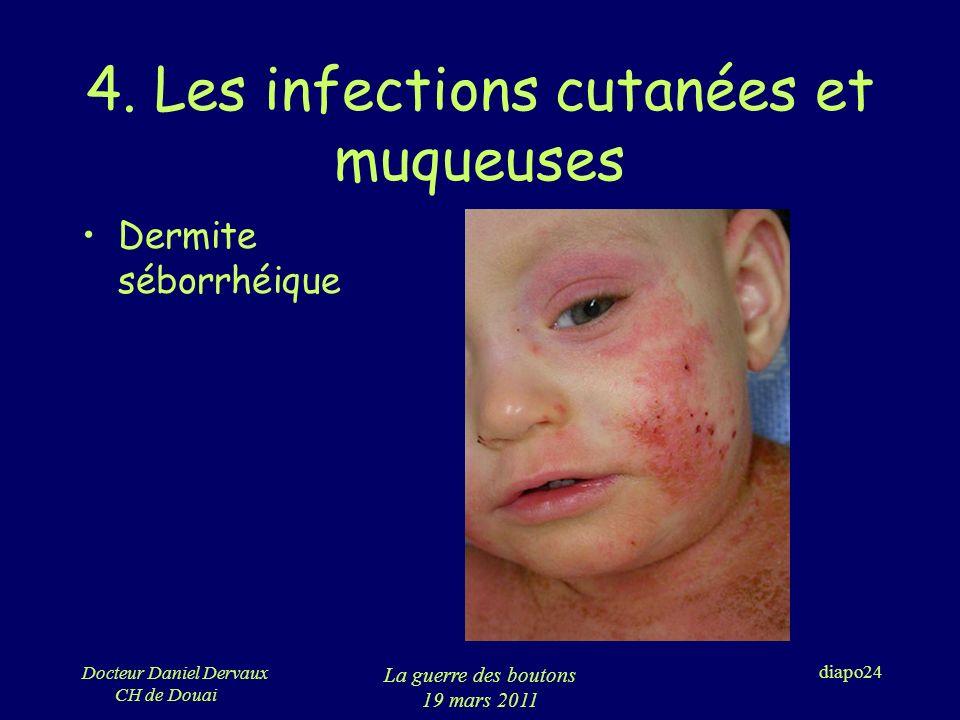 4. Les infections cutanées et muqueuses