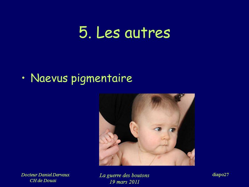 5. Les autres Naevus pigmentaire La guerre des boutons 19 mars 2011