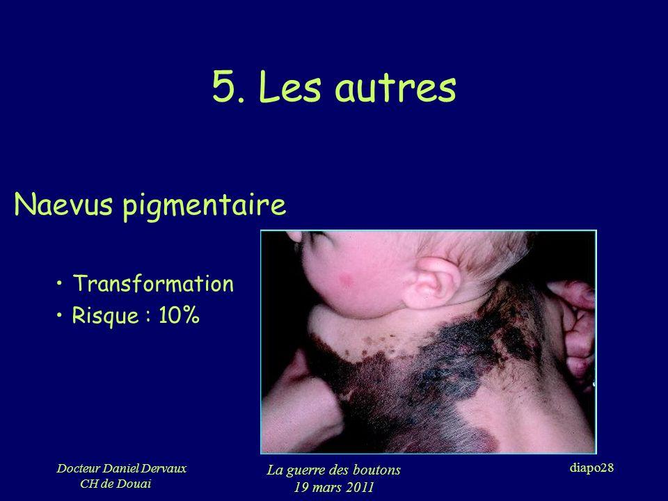 5. Les autres Naevus pigmentaire Transformation Risque : 10%