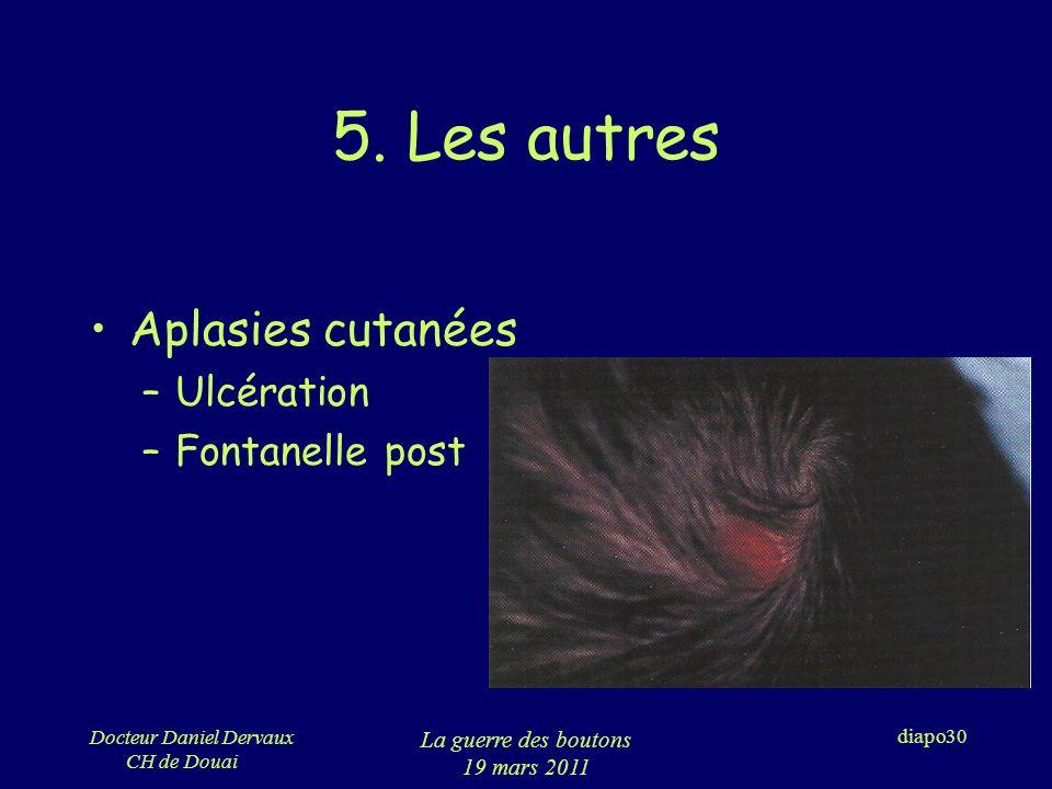 5. Les autres Aplasies cutanées Ulcération Fontanelle post