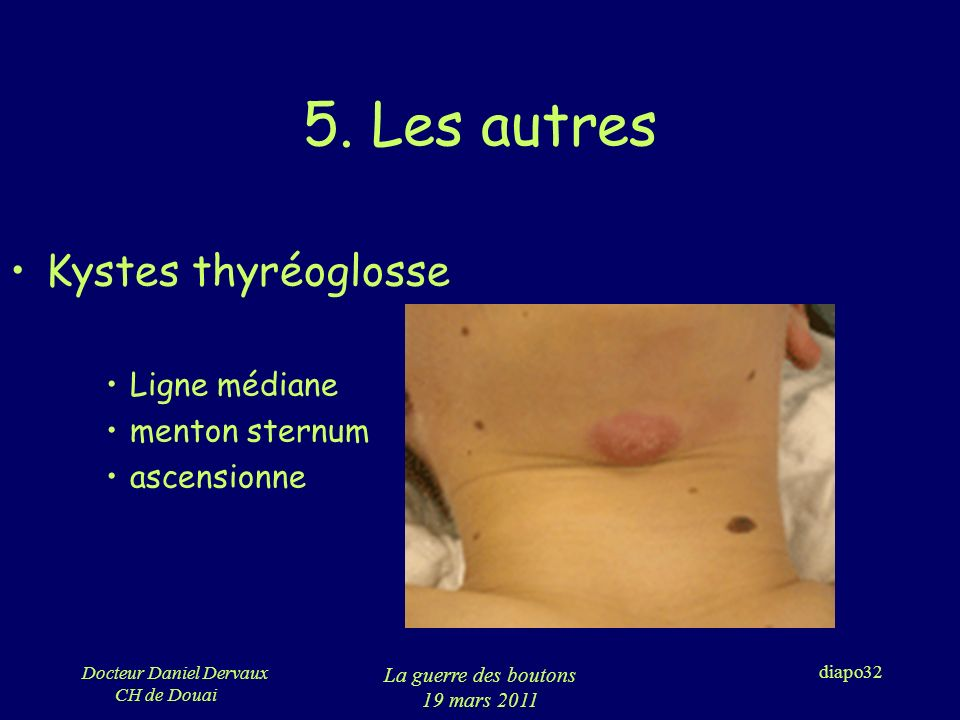 5. Les autres Kystes thyréoglosse Ligne médiane menton sternum