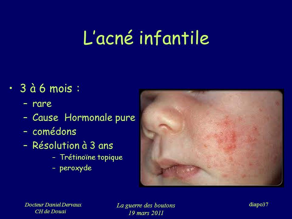 L'acné infantile 3 à 6 mois : rare Cause Hormonale pure comédons