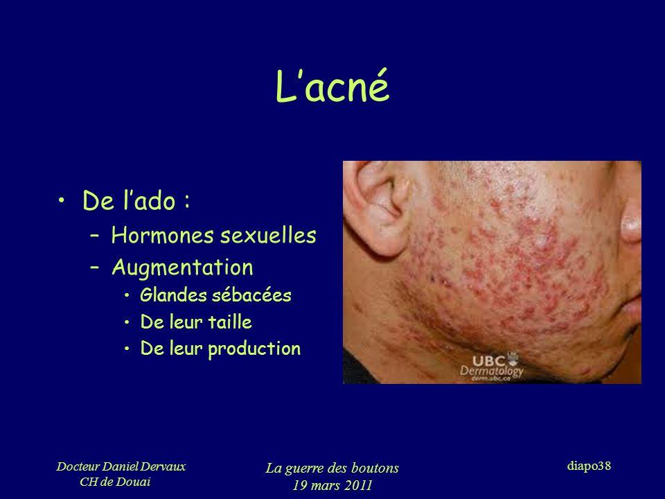 L'acné De l'ado : Hormones sexuelles Augmentation Glandes sébacées