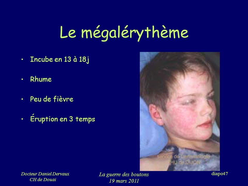 Le mégalérythème Incube en 13 à 18j Rhume Peu de fièvre