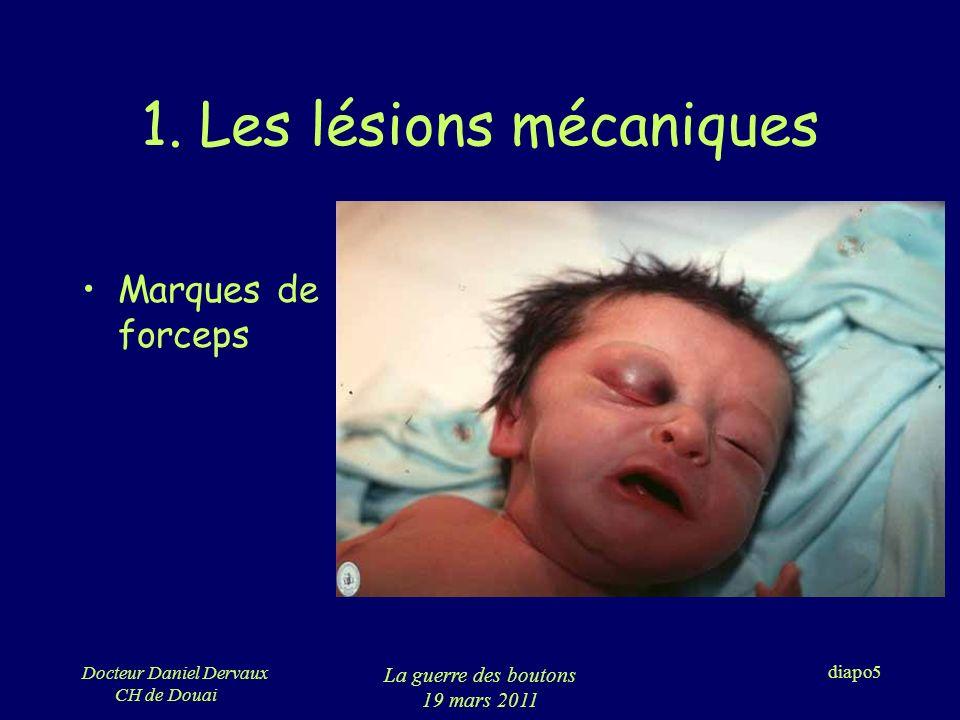 1. Les lésions mécaniques