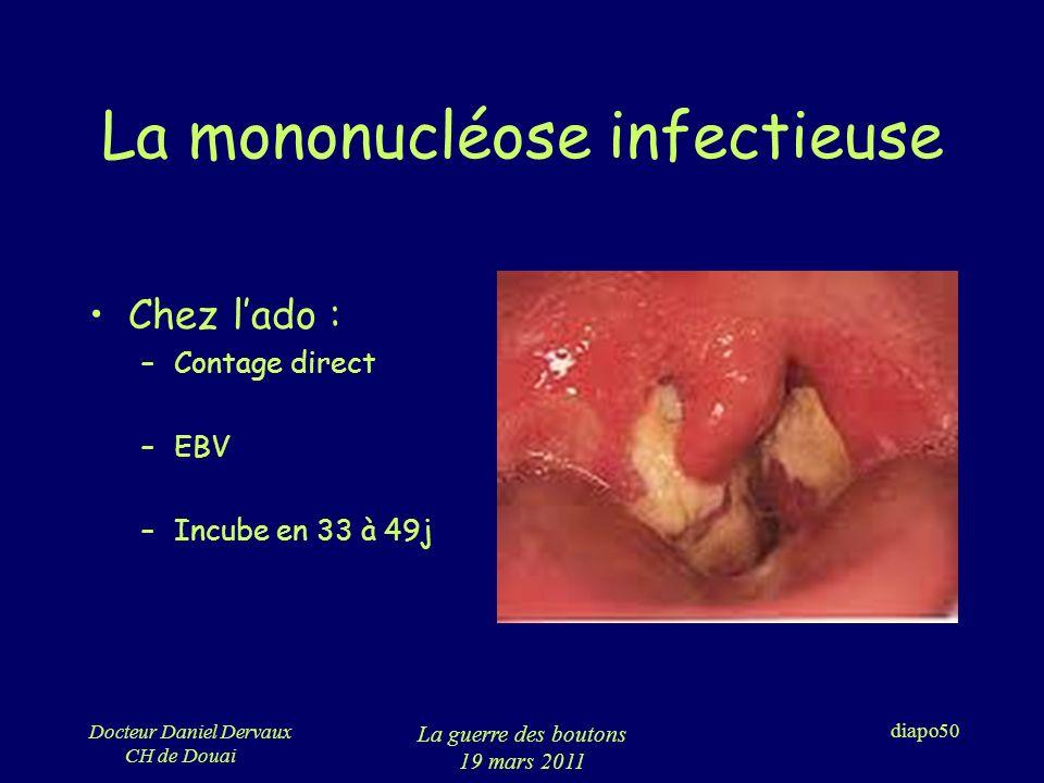 La mononucléose infectieuse