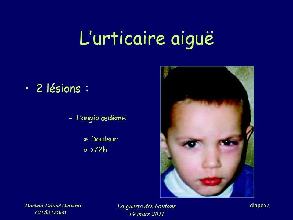 L'urticaire aiguë 2 lésions : L'angio œdème Douleur >72h