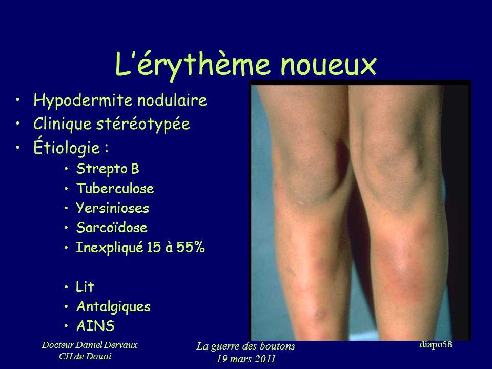 L'érythème noueux Hypodermite nodulaire Clinique stéréotypée
