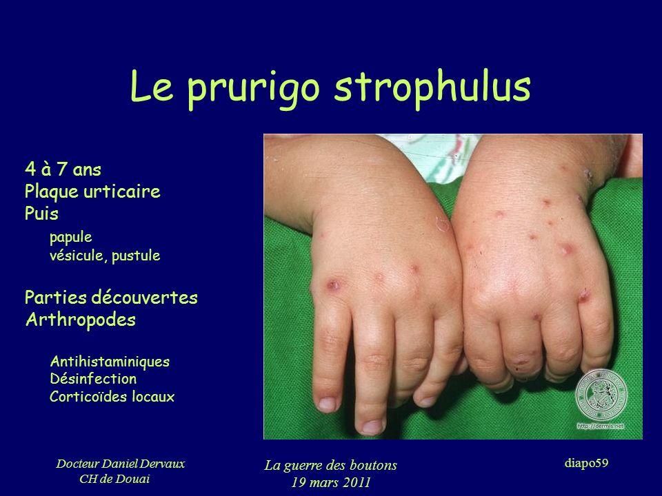Le prurigo strophulus 4 à 7 ans Plaque urticaire Puis papule
