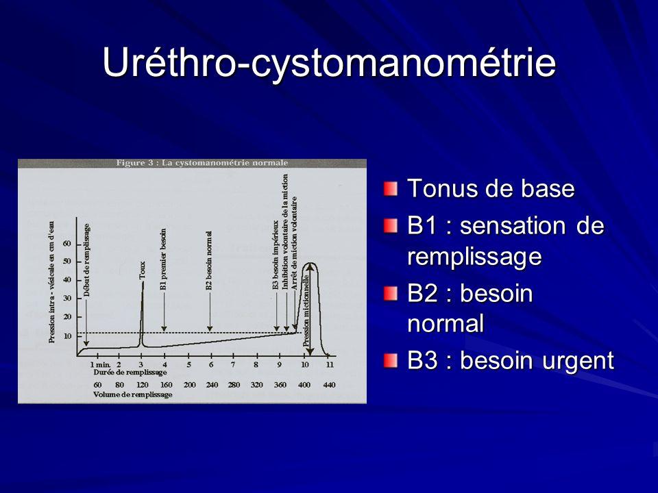 Uréthro-cystomanométrie