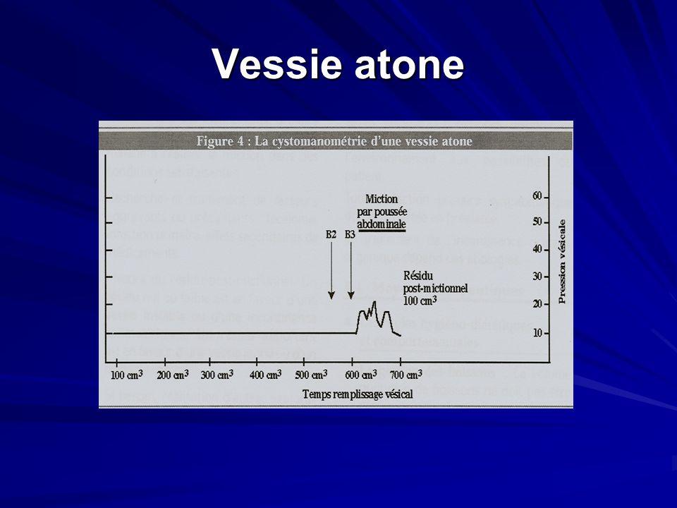 Vessie atone