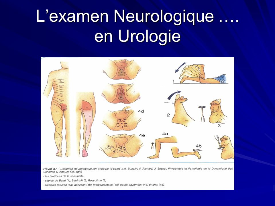 L'examen Neurologique …. en Urologie