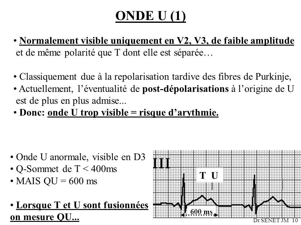 ONDE U (1) Normalement visible uniquement en V2, V3, de faible amplitude. et de même polarité que T dont elle est séparée…