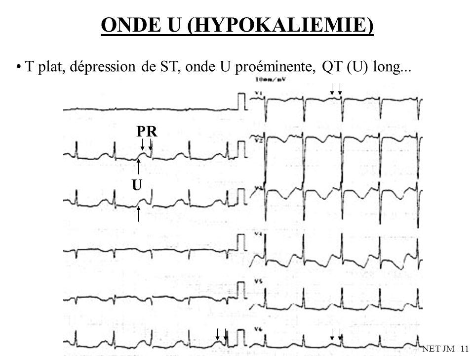 ONDE U (HYPOKALIEMIE) T plat, dépression de ST, onde U proéminente, QT (U) long... PR U Dr SENET JM
