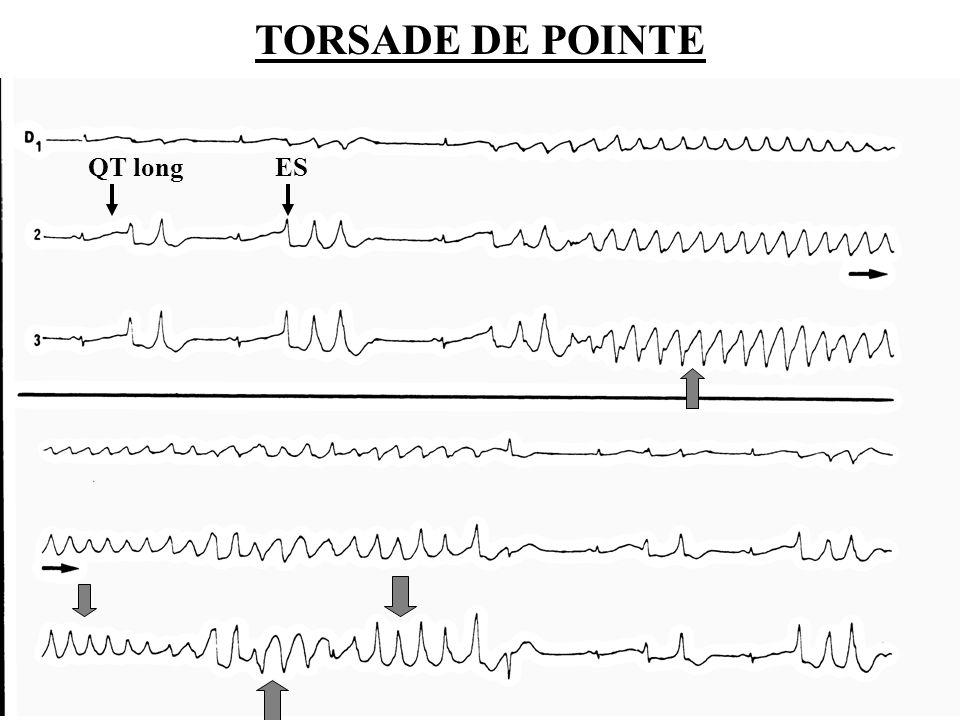 TORSADE DE POINTE QT long ES Dr SENET JM