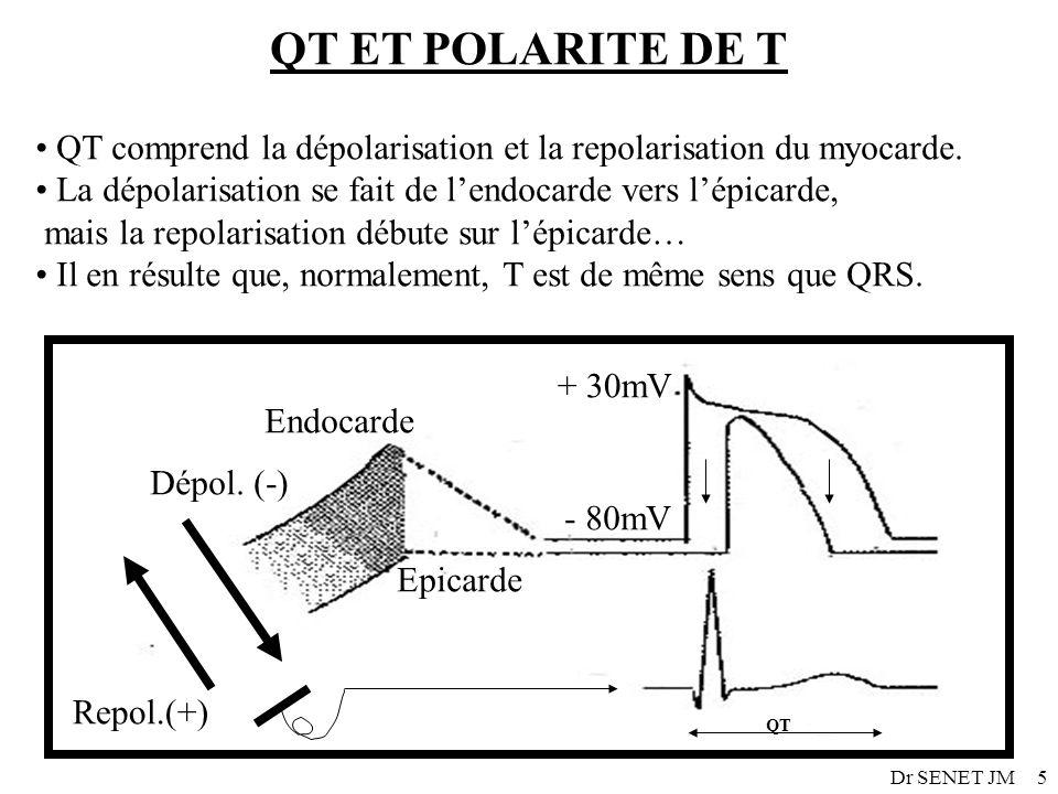 QT ET POLARITE DE T QT comprend la dépolarisation et la repolarisation du myocarde. La dépolarisation se fait de l'endocarde vers l'épicarde,