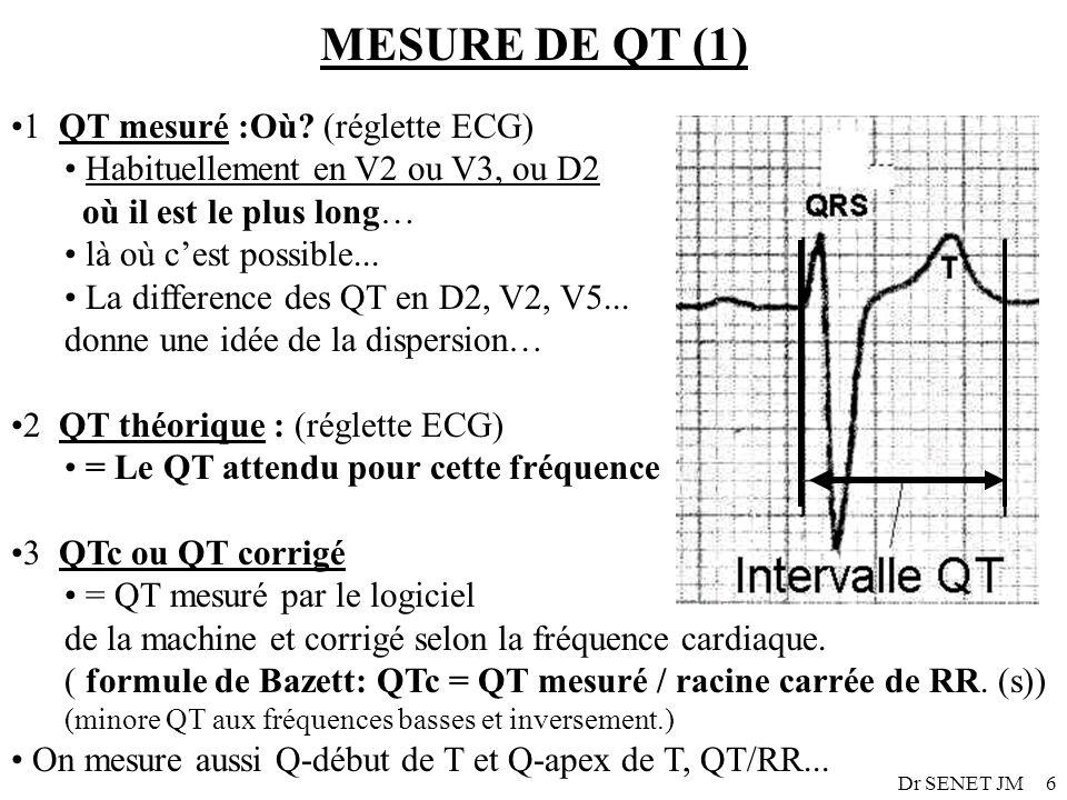 MESURE DE QT (1) 1 QT mesuré :Où (réglette ECG)