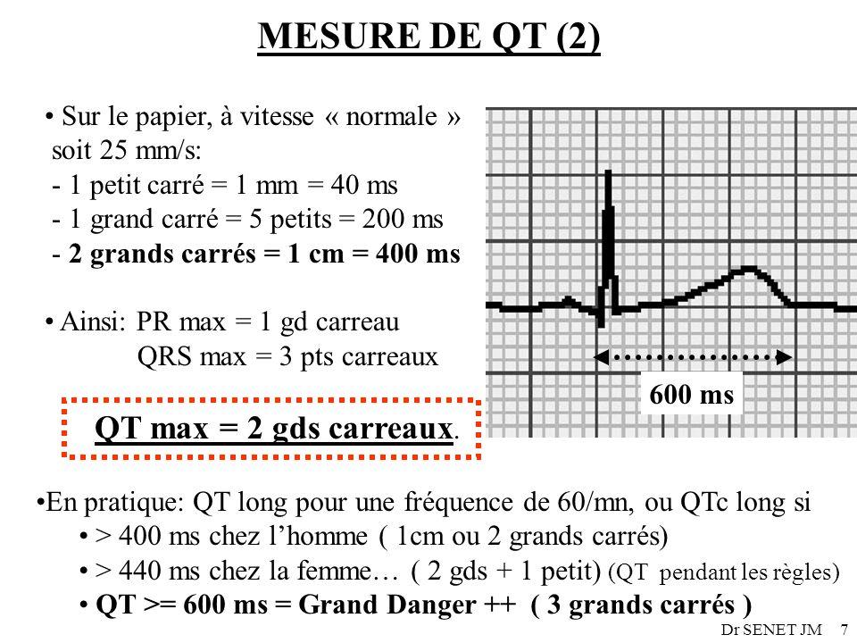 MESURE DE QT (2) Sur le papier, à vitesse « normale » soit 25 mm/s: