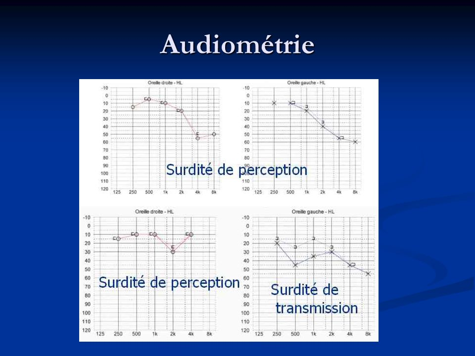 Audiométrie Surdité de perception Surdité de perception Surdité de