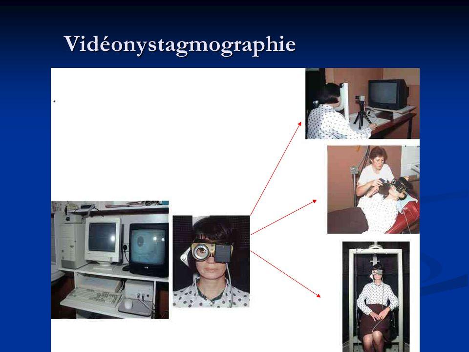 Vidéonystagmographie