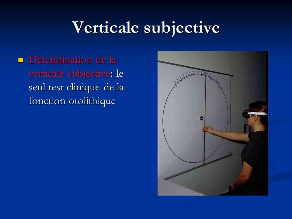 Verticale subjective Détermination de la verticale subjective: le seul test clinique de la fonction otolithique.