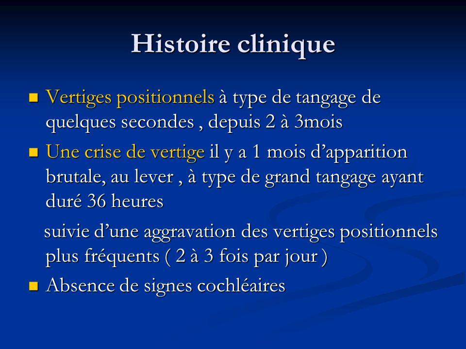Histoire clinique Vertiges positionnels à type de tangage de quelques secondes , depuis 2 à 3mois.