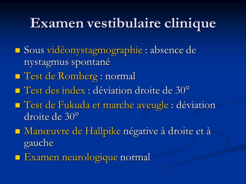 Examen vestibulaire clinique