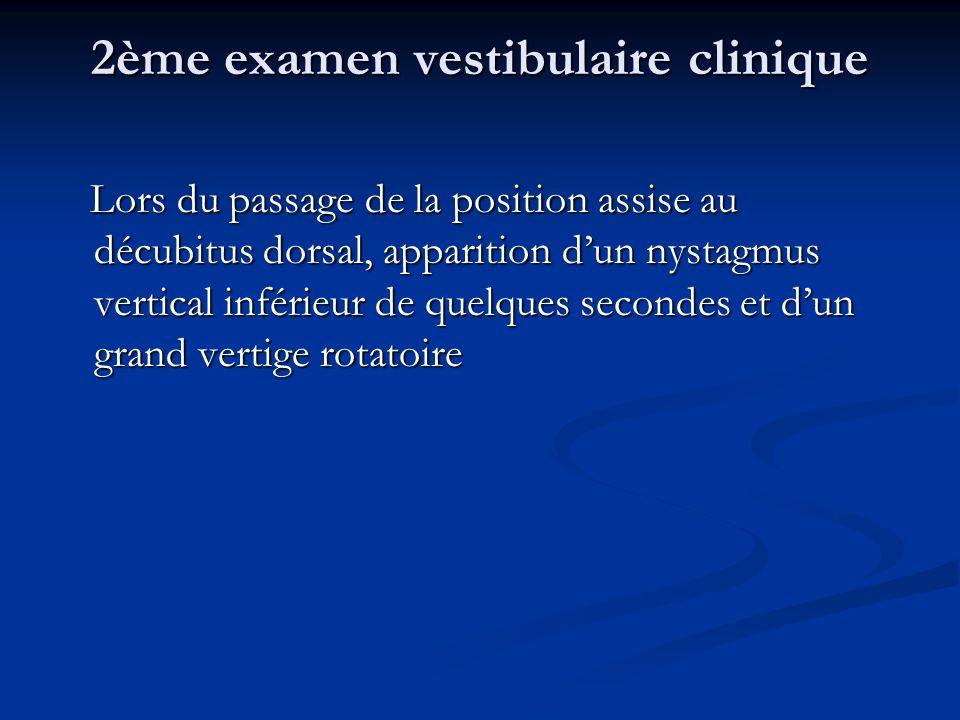 2ème examen vestibulaire clinique