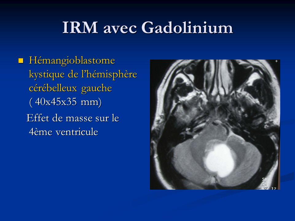 IRM avec Gadolinium Hémangioblastome kystique de l'hémisphère cérébelleux gauche ( 40x45x35 mm) Effet de masse sur le 4ème ventricule.