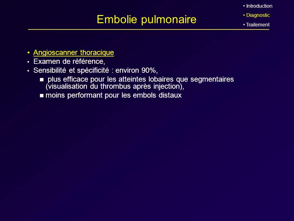 Embolie pulmonaire Angioscanner thoracique Examen de référence,