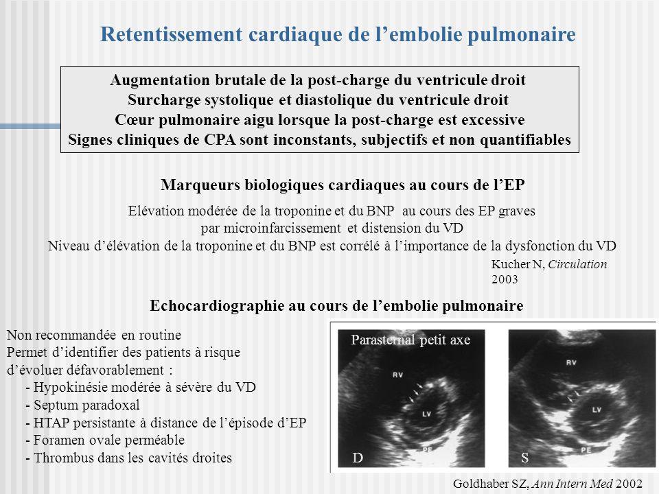 Retentissement cardiaque de l'embolie pulmonaire