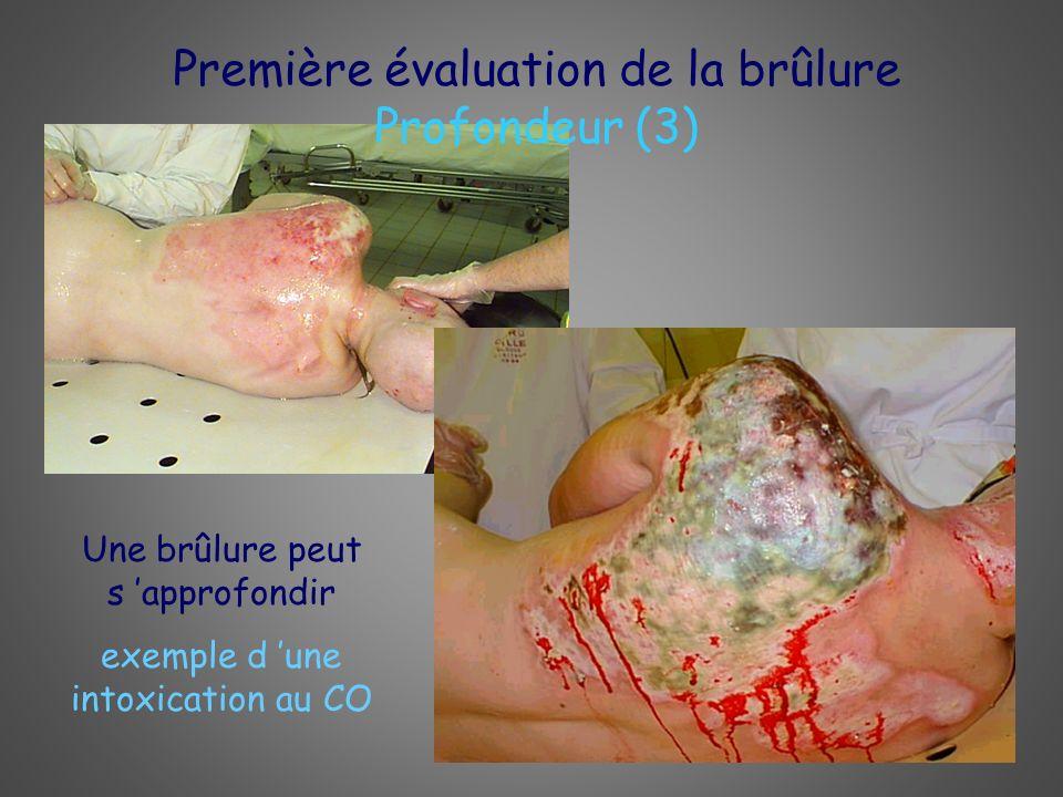 Première évaluation de la brûlure Profondeur (3)