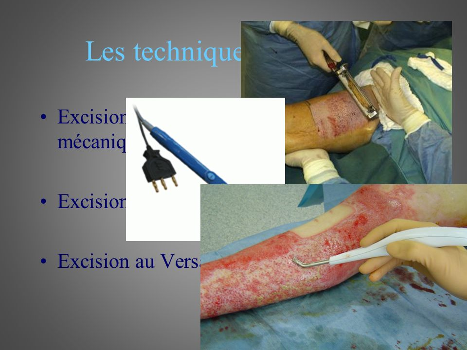 Les techniques d'excision