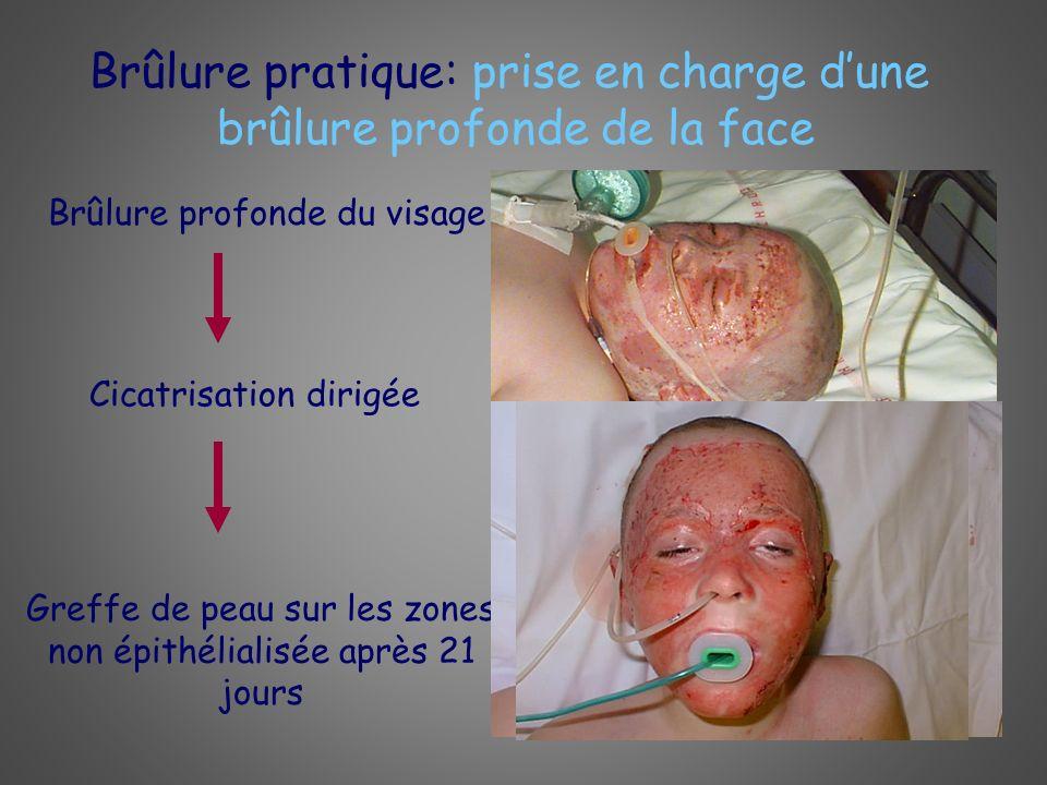Brûlure pratique: prise en charge d'une brûlure profonde de la face