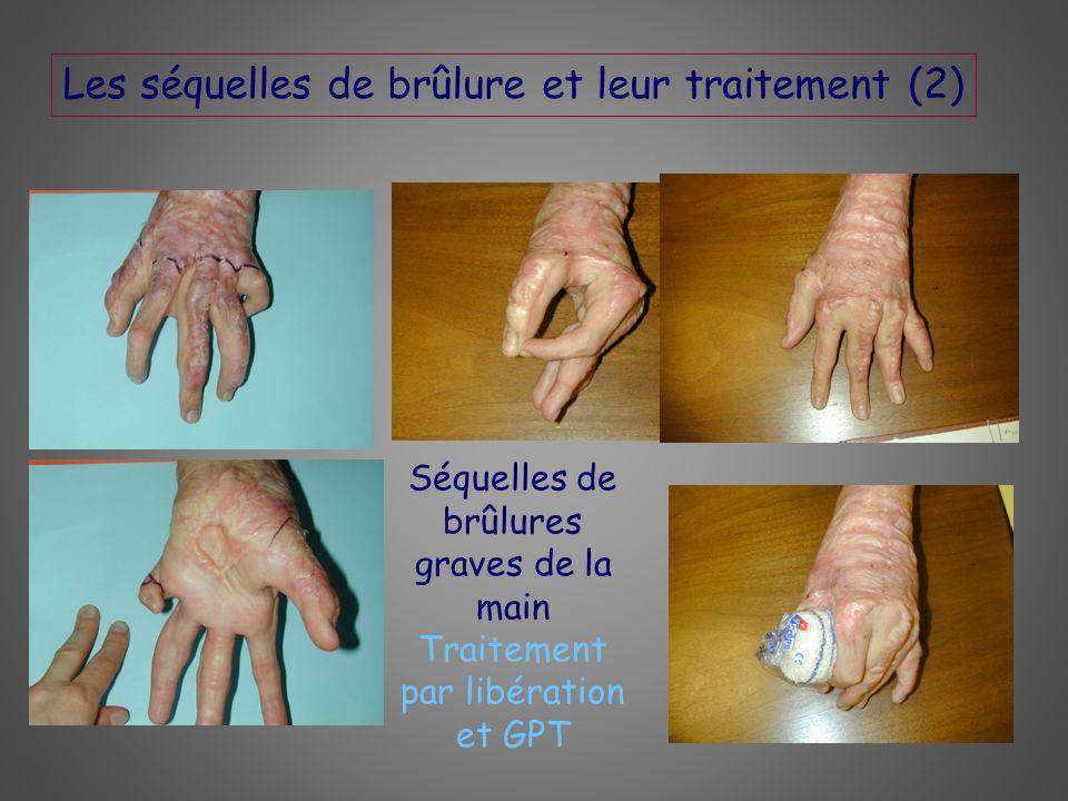 Les séquelles de brûlure et leur traitement (2)