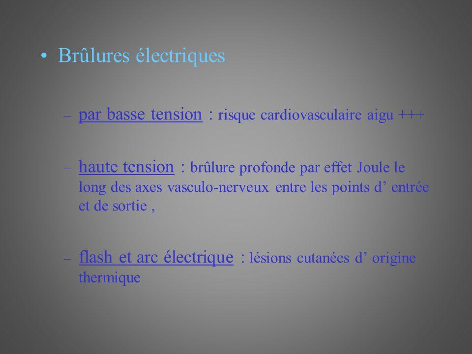 Brûlures électriques par basse tension : risque cardiovasculaire aigu +++