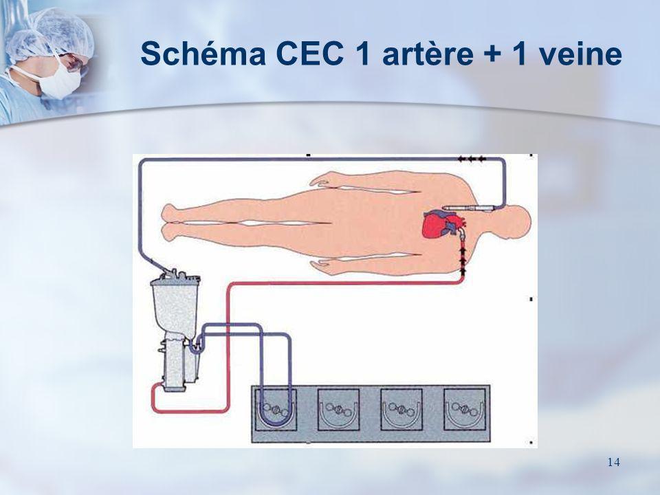 Schéma CEC 1 artère + 1 veine