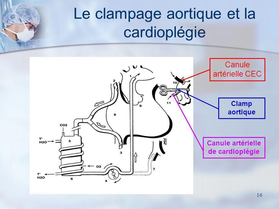 Le clampage aortique et la cardioplégie