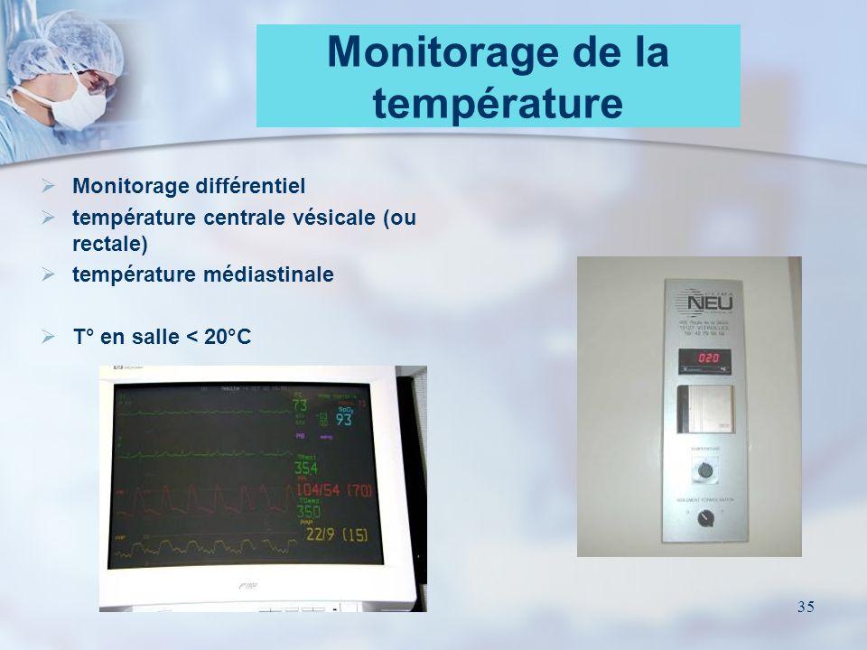 Monitorage de la température