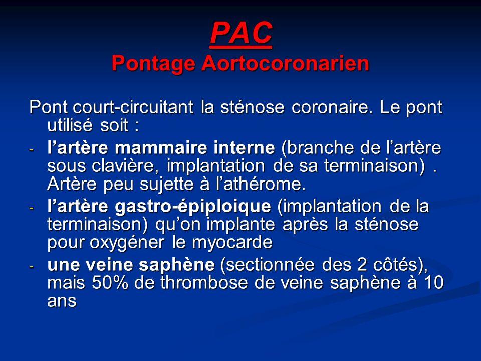PAC Pontage Aortocoronarien