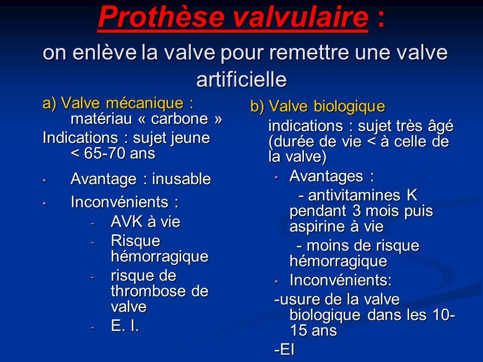 Prothèse valvulaire : on enlève la valve pour remettre une valve artificielle
