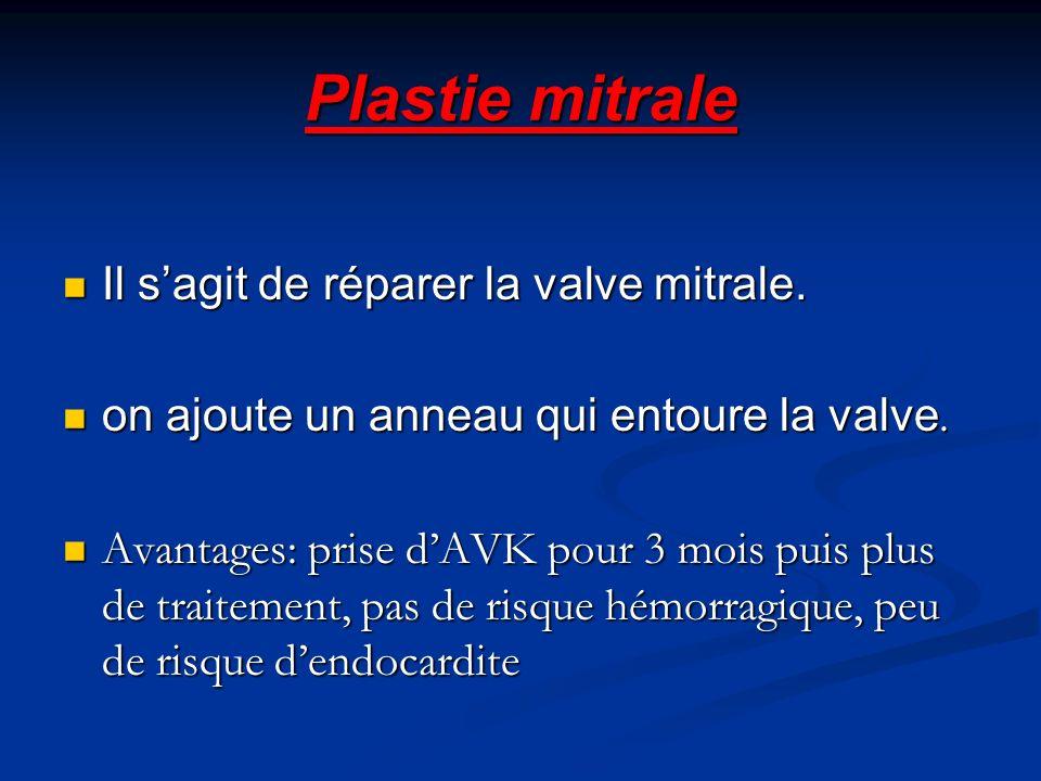 Plastie mitrale Il s'agit de réparer la valve mitrale.