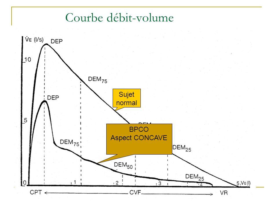 Courbe débit-volume Sujet normal BPCO Aspect CONCAVE