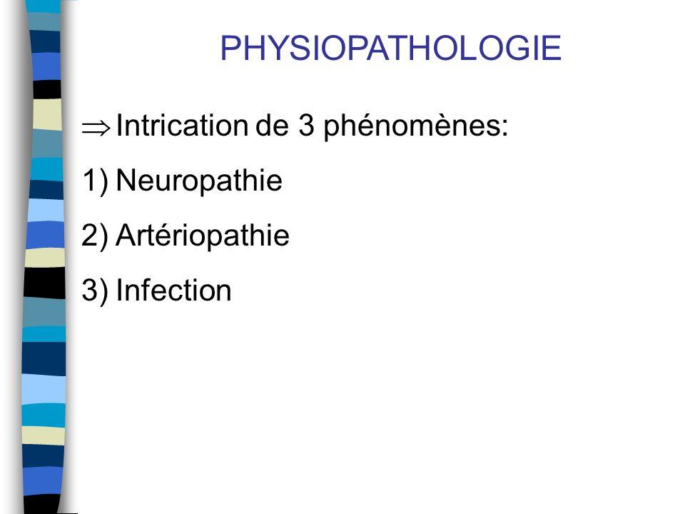 PHYSIOPATHOLOGIE Intrication de 3 phénomènes: Neuropathie